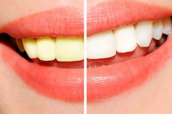 Натуральный отбеливатель для зубов, вы можете отбеливать зубы всего за 2 минуты дома