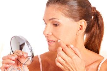 5 способов справиться с носогубными складками дома и у косметолога
